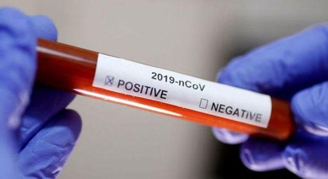 Koronavirüs Vaka, Hasta, ölü sayısı açıklandı